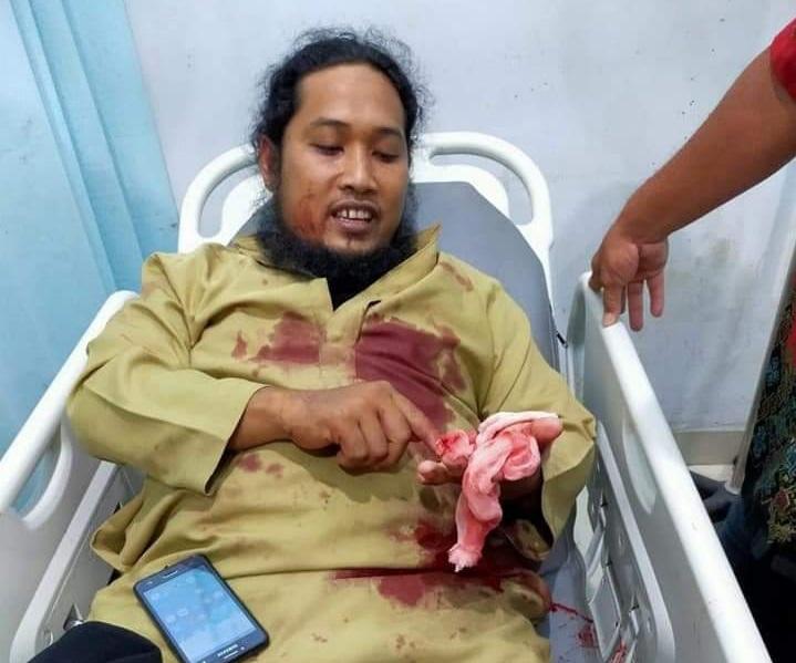 Penusukan Ustadz Saat Ceramah di Aceh Tenggara